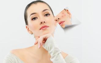 7 cách trị thâm mụn hiệu quả trả lại cho bạn làn da trắng mịn